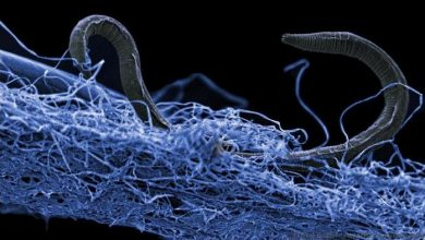 A nematode (eukaryote) in a biofilm of microorganisms. This unidentified nematode (Poikilolaimus sp.) from Kopanang gold mine in South Africa, lives 1.4 km below the surface. Credit: Gaetan Borgonie, Extreme Life Isyensya, Belgium