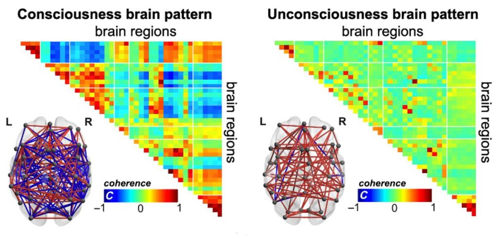 In consciousness and unconsciousness, our brains have different modes to self-organize as time goes by. When we are conscious, brain regions communicate with a rich temperament, showing both positive and negative connections. Image Credit: E. Tagliazucchi & A. Demertzi.