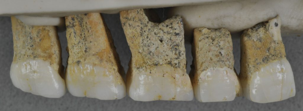 Two premolars and three molars from the upper right jaw of the same Homo luzonensis adult. Image Credit: Detroit et al. 2019.