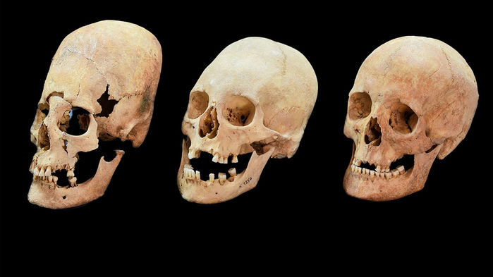 Regular skulls compared to an artificially deformed skulls. Image Credit: Bavarian State Archaeological Collection.