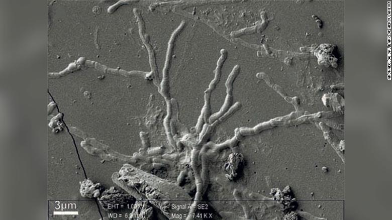 Part of the vitrified brain cells as seen under the microscope. You can see their glass-like appearance.