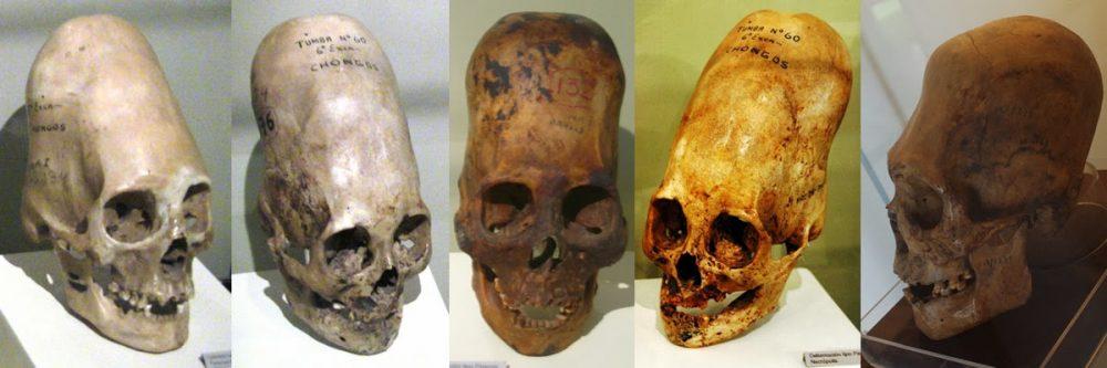 Several skulls of members of the Paracas Culture as seen in museum.