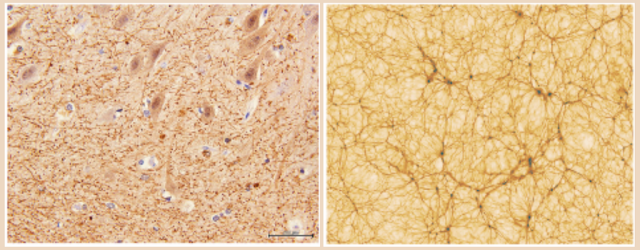On the left, you see part of the cerebellum, enhanced with a 40x magnification factor through electronic microscopy. On the right is a small bit of a cosmological simulation. Credits: Dr. E. Zunarelli, University Hospital of Modena; Vazza et al. 2019 A&A