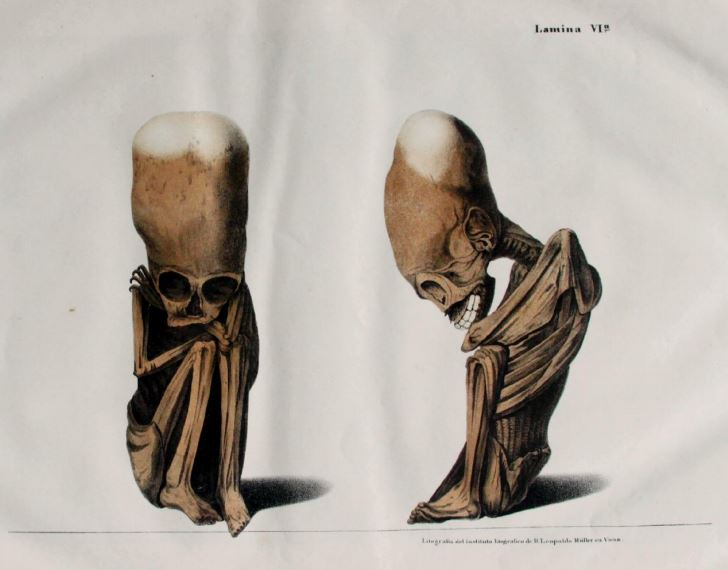 Lithograph of a fetus