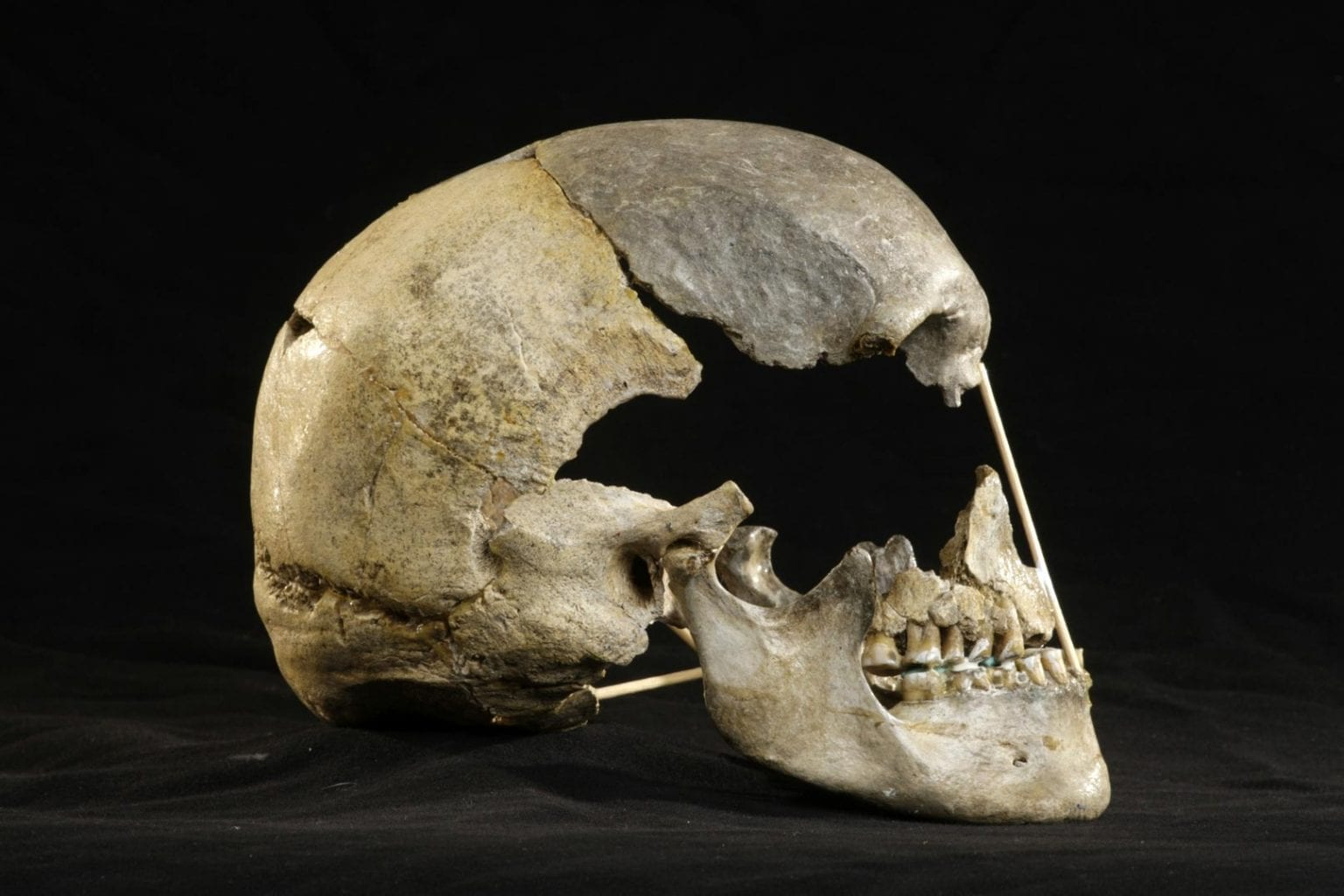 Lateral view of the skull. Credit: Martin Frouz