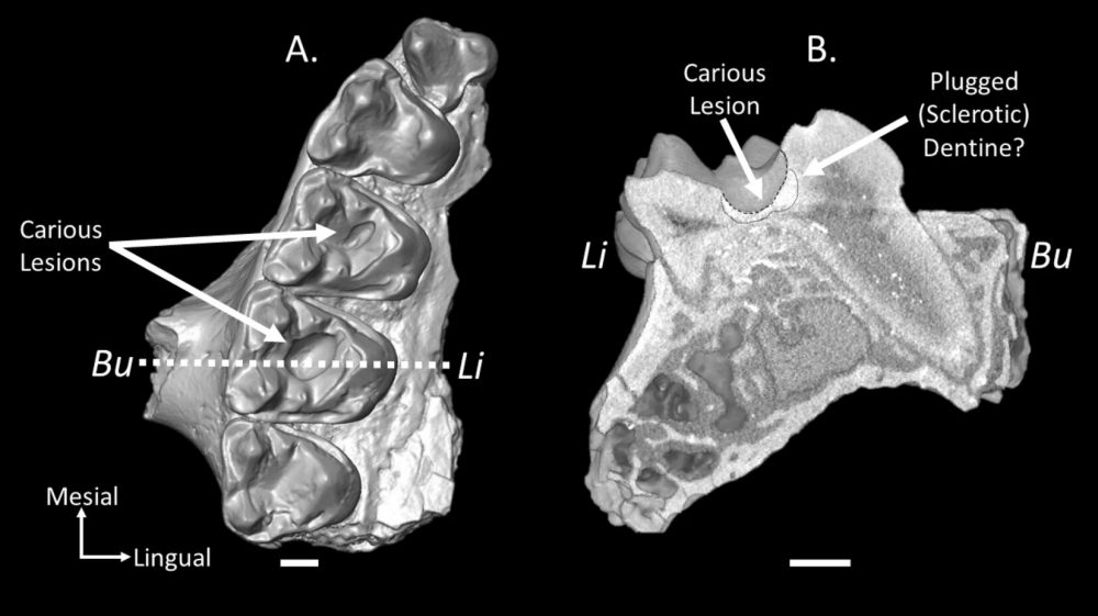 Reconstruction of a right upper jaw fragment (A) with cavities in the molars and another reconstruction of a slice through the caries (B). Credit: Keegan R. Selig & Mary T. Silcox / Scientific Reports, 2021